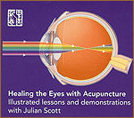 Healing Eyes with Acupuncture DVD