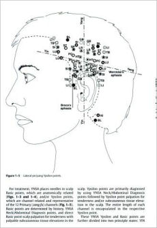 Yamamoto New Scalp Acupuncture Principles And Practice on acupuncture points map, acupuncture needle placement map, face acupuncture map, foot acupuncture map, acupuncture meridian map, eye acupuncture map, nervous chinese acupuncture map, tongue acupuncture map, auricular acupuncture map, acupuncture brain map, ear acupuncture map,