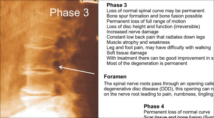 """Lumbar Phases Spinal Degeneration Poster 18/"""" X 24/"""" Chiropractic"""