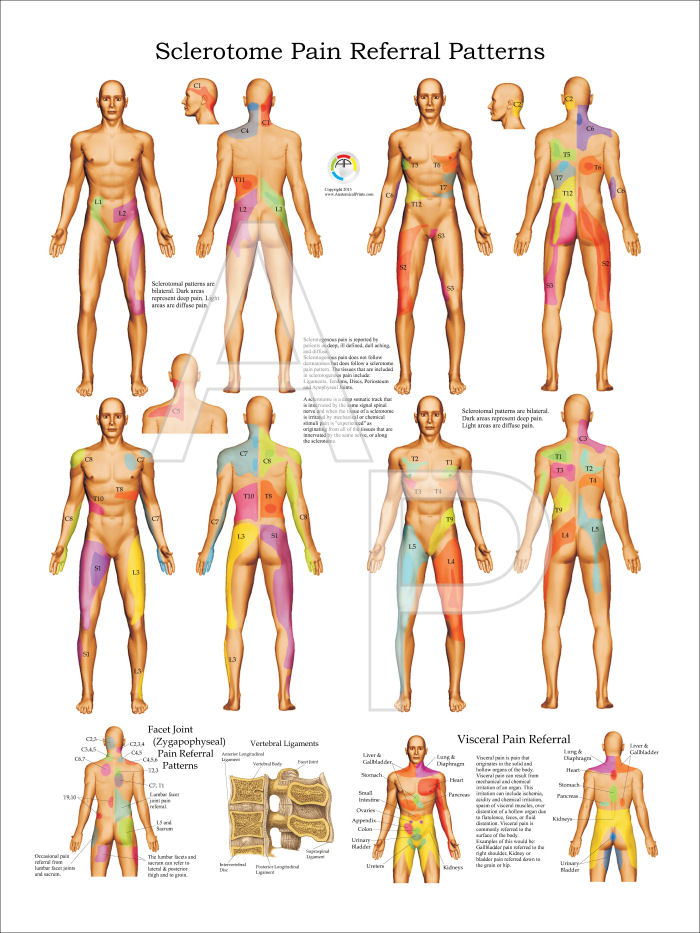 Sclerotomal Pain Referral From C Spine Medicine Bibliographies Classy Referred Pain Patterns