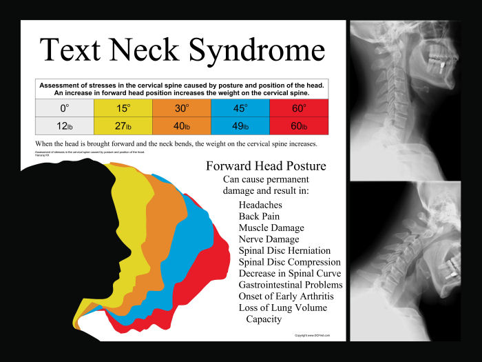 Image result for text neck