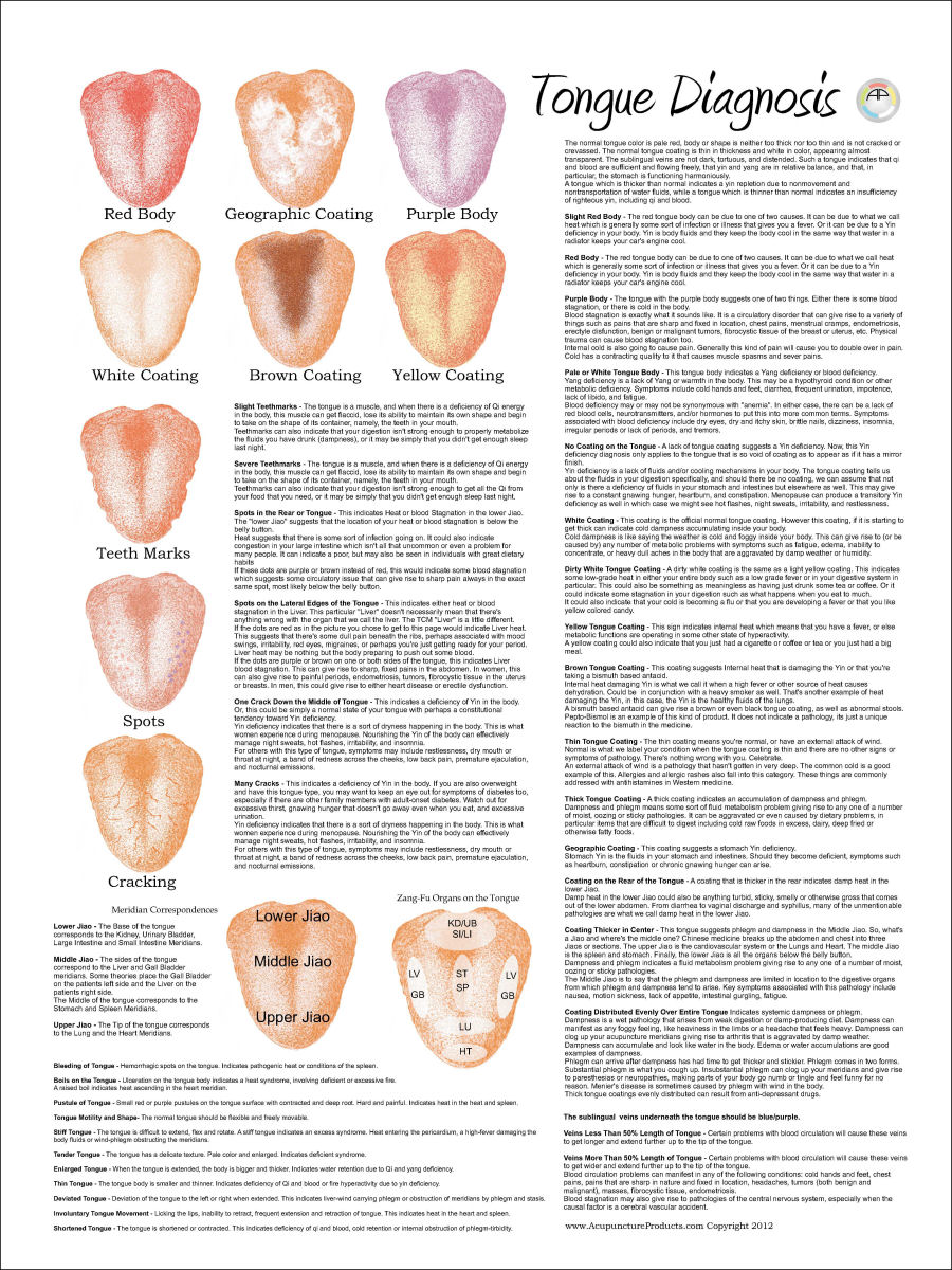 Chinese Tongue Diagnosis Poster