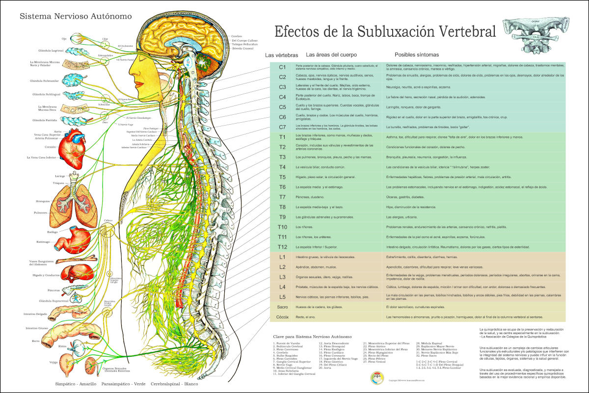 Effects Symptoms Vertebral Spinal Subluxation Poster 18 X 24 Chiropractic Chart